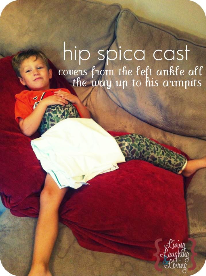 Hip Spica Cast For Femur Fracture